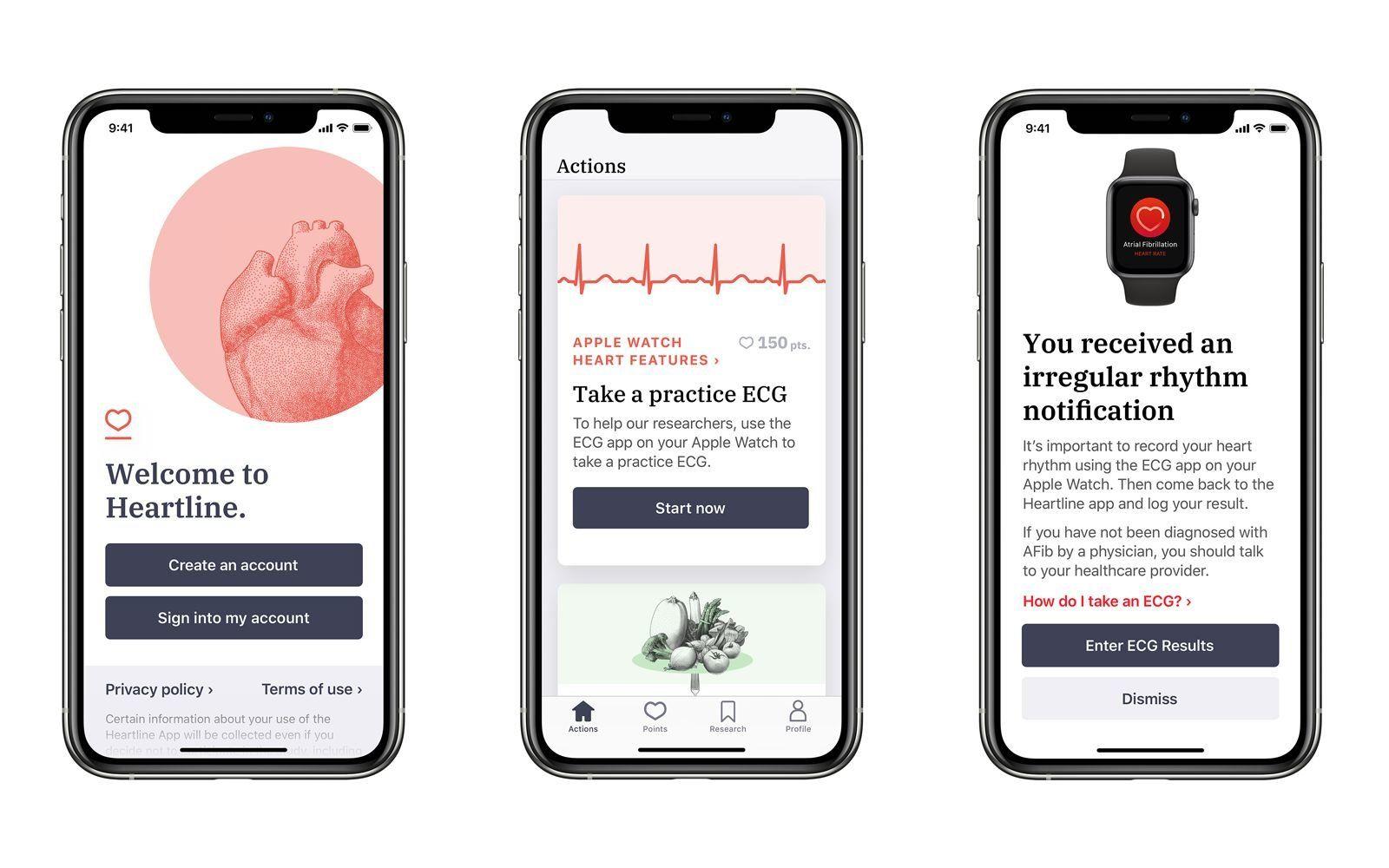 Apple Watch Kalp Atış Takibi